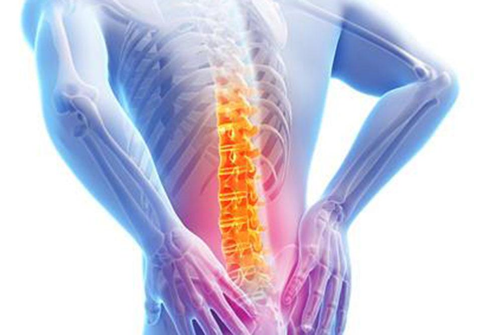Orthopädische Klinik Hessisch Lichtenau - Veranstaltung - Rücken